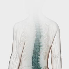 퇴행성무릎관절염